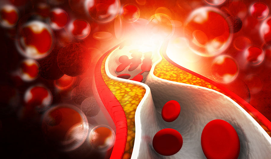 Topline Results from Lipid-Lowering Trial 'Just What the Doctor Ordered'