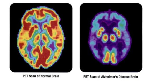 3D Signatures' TeloView Can Diagnose Alzheimer's with Cheek Swab