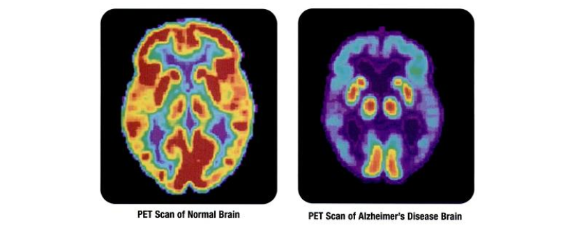 Biopharma to Accelerate Alzheimer Trial Completion