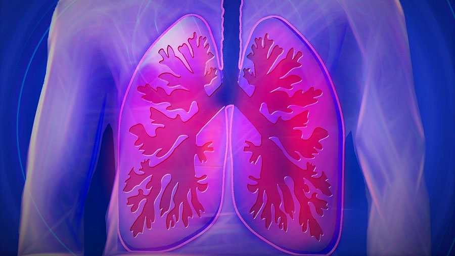 Biopharma Announces Pulmonary Fibrosis Trial Now 25% Enrolled